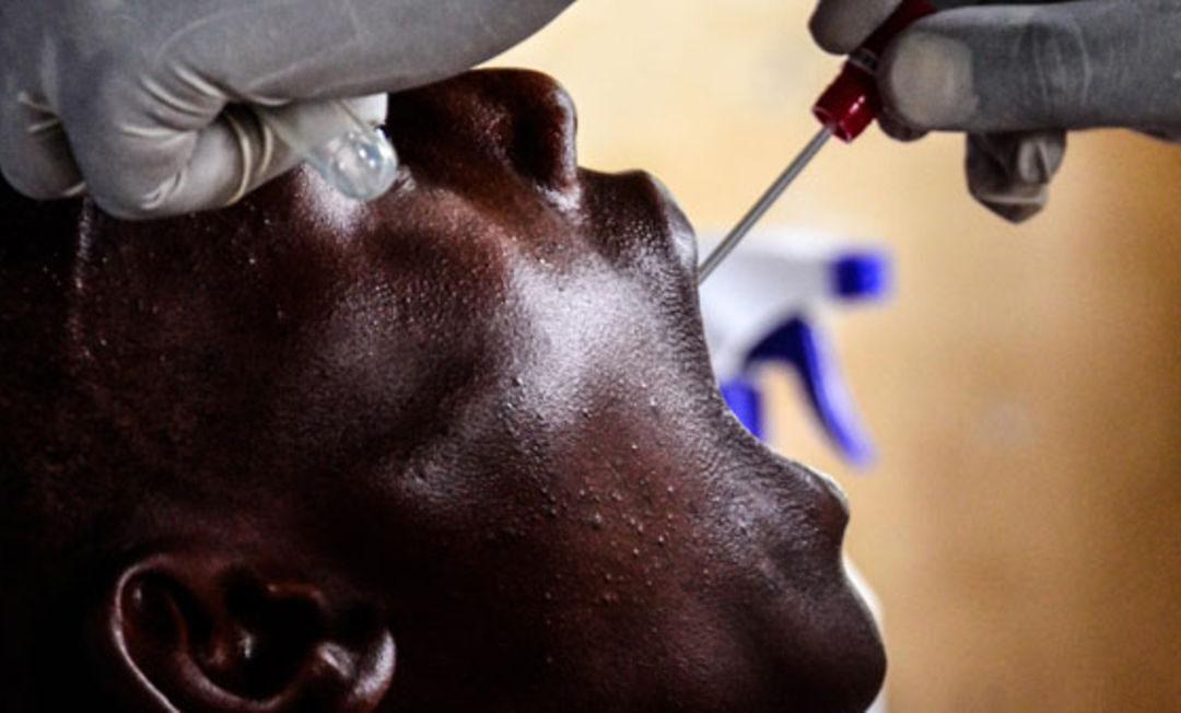 Scientists Researching Type of Coronavirus in Uganda